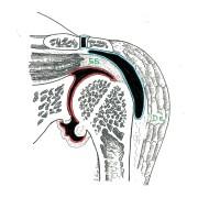 l'arthrose (rouge) se limite à l'articulation principale