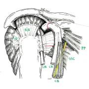 sections effectuées pour faire une butée d'épaule