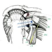 Butée d'épaule en place à travers le muscle SSC. En jaune le nerf de la flexion du coude