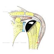 Fig.1: La PTE anatomique reproduit la forme de l'humérus