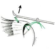 Réparation de tendon: récupération des fils