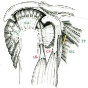 Le tendon Long Biceps (LBi) est secondé par un tendon plus solide et jamais malade, le Court Biceps (CBi)
