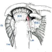 Inflammation du tendon LBi dans sa gouttière de glissement
