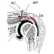 Fig. 1 : épaississement du tendon par le fait d'une inflammation