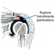 Fig. 3 : rupture transfixiante (perforation)