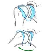 Fig. 2 : écartement du bras par rapport au corps