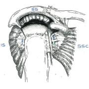 réparation limitée à 2 tendons