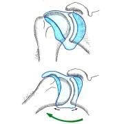 Fig. 1 : épaule normale