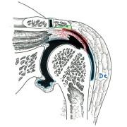 Fig. 1 : rupture partielle profonde du SS