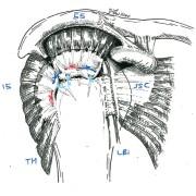 réparation en double rangée des deux tendons