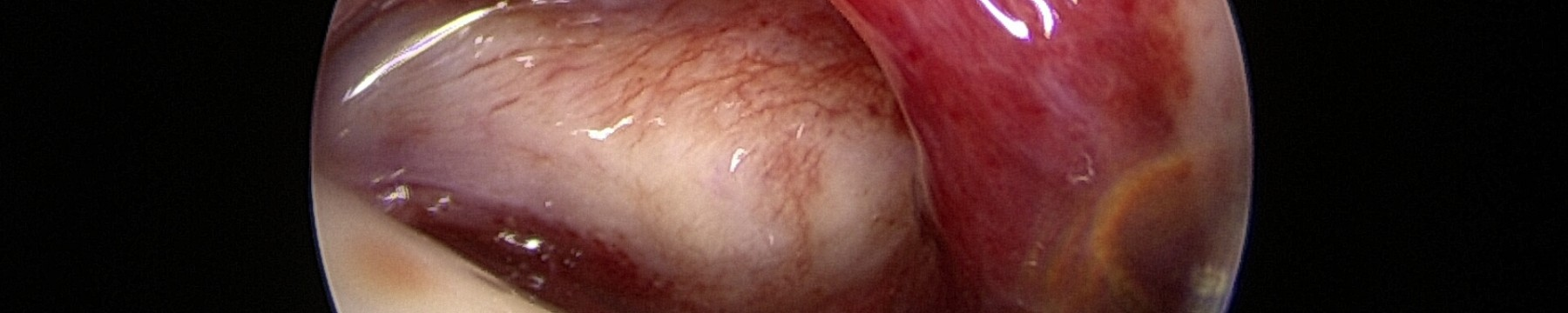 Capsulite rétractile «primaires»