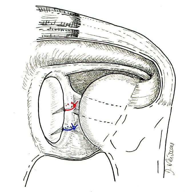 Fig. 3 : suture d'une lésion de Bankart