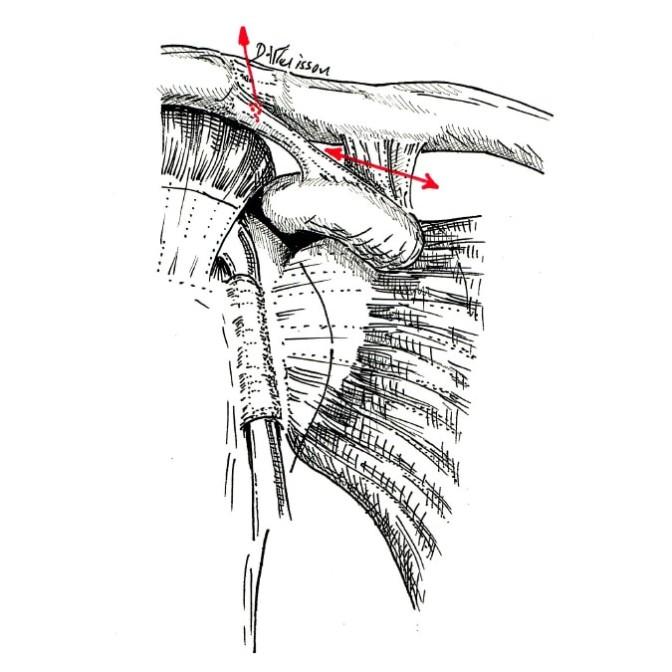 Fig. 1 : ligaments acromio-claviculaires, en rouge zone de ruptures en cas de traumatisme