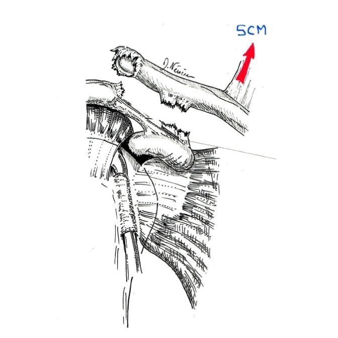 Fig. 2.: dislocation de l'articulation par rupture des ligaments entre clavicule et omoplate