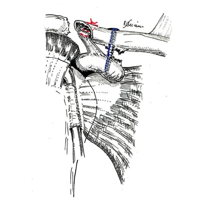Fig. 3: stabilisation de la clavicule grâce à une ligamentoplastie