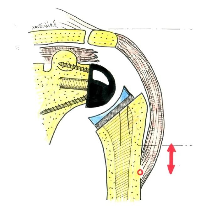 Fig.1: PTE inversée: ne reproduit pas la forme de l'humérus