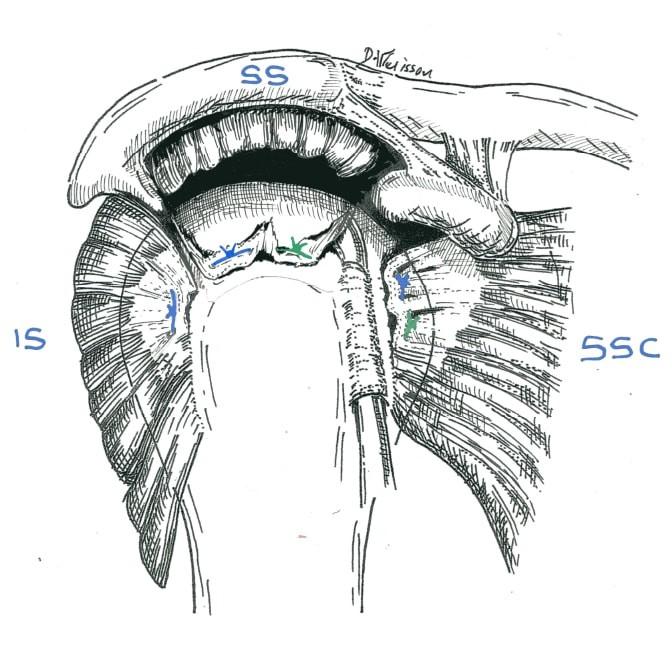 Fig.3: disparition complète d'un tendon (SS) par fragilité tendineuse