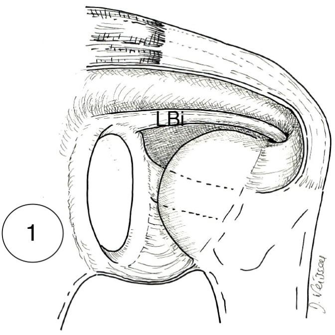 Fig. 1 : en conditions normales