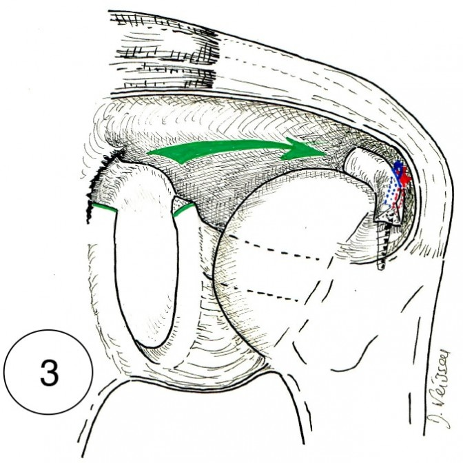 "Fig. 3 : la ténodèse en ""T"" du tendon du long biceps"