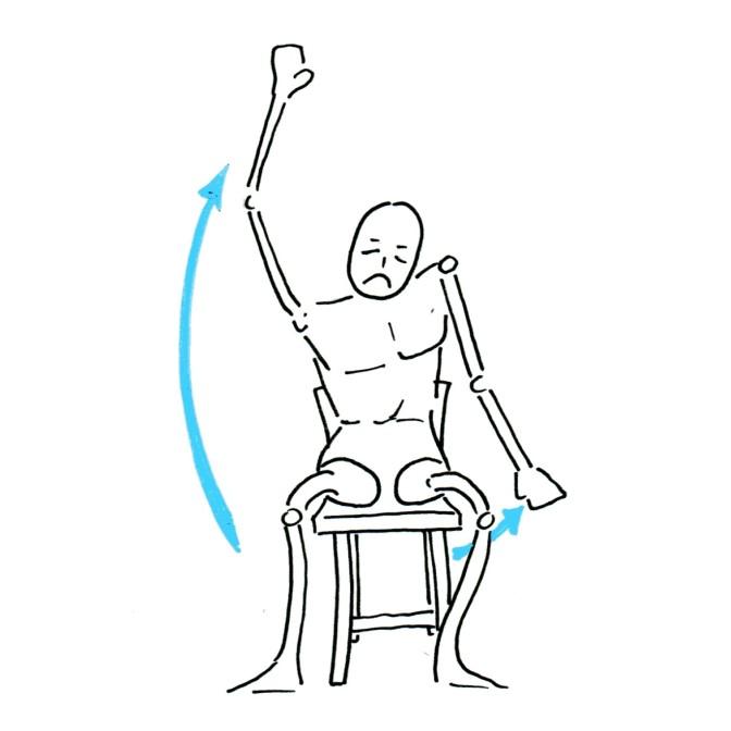 Fig.1: Absence de PTE, le bras ne monte pas