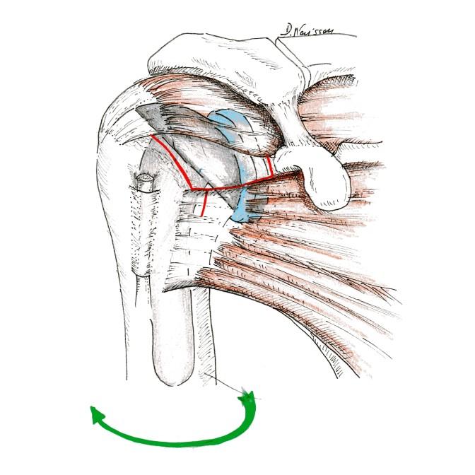 Fig.3: Mini-ouverture pour pose de PTE: tendons moins agressés