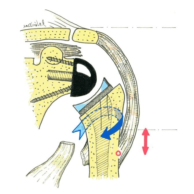 PTE inversée et transfert du tendon grand dorsal