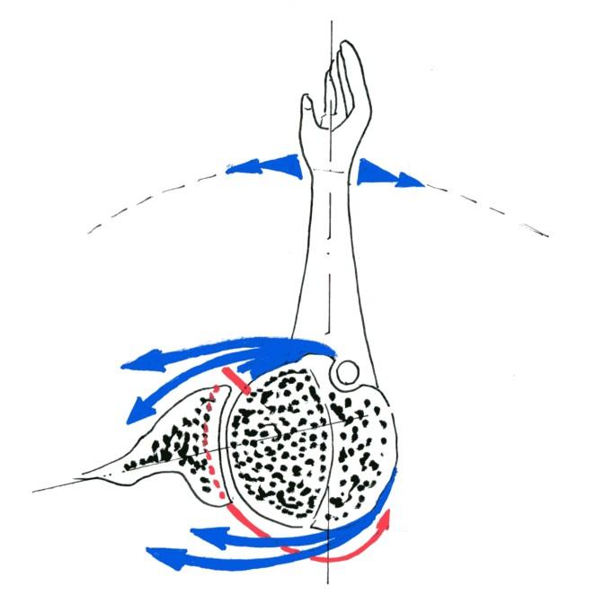 Fig.5: transfert du grand dorsal = restauration de la rotation externe