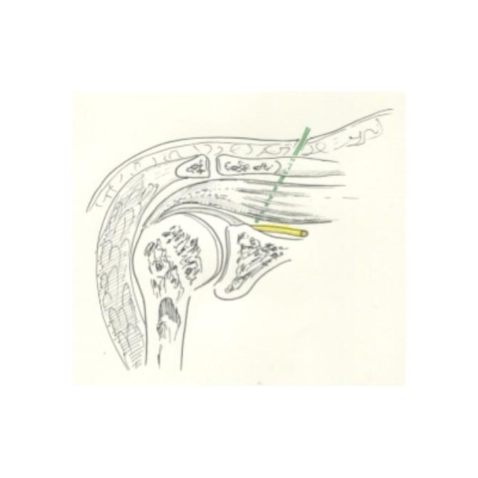 Dans l'AL continue, le cathéter est placé près du nerf destiné à 'épaule
