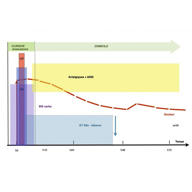 Gestion de la douleur en hospitalisation ambulatoire (