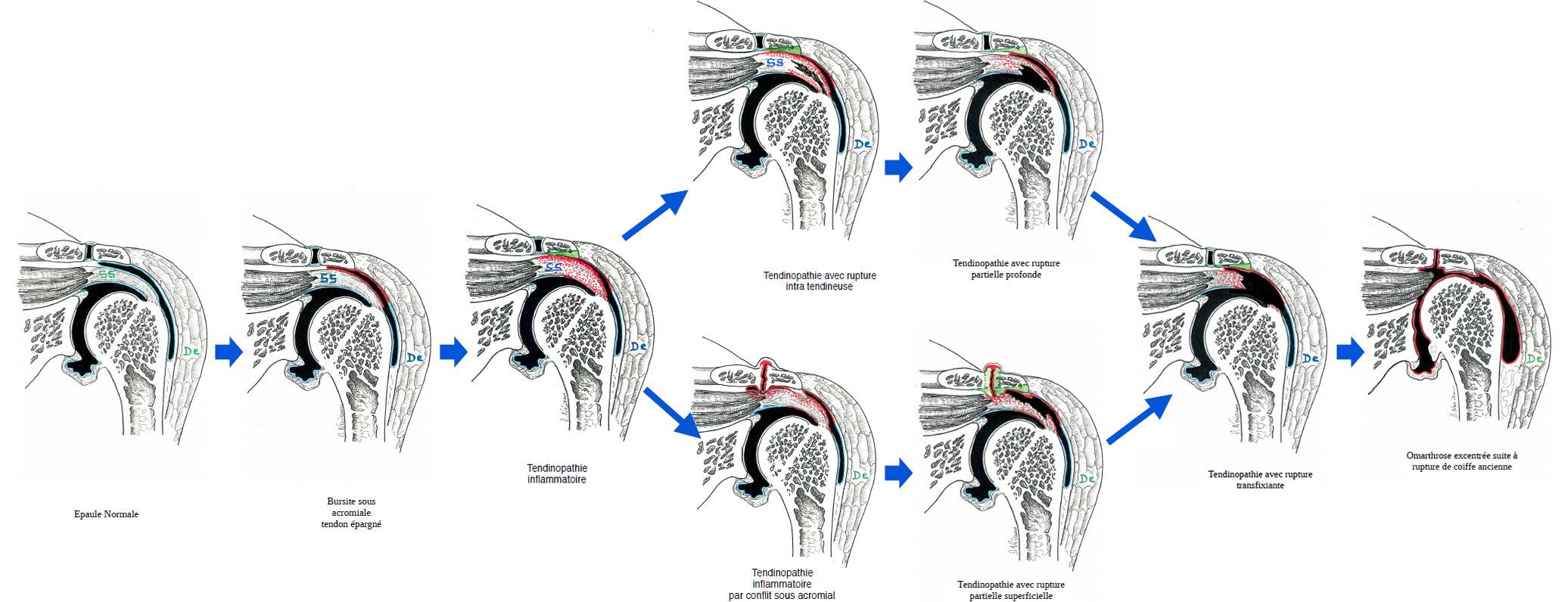 Histoire évolutive de la pathologie de la coiffe